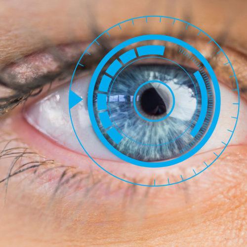 Die Kontaktlinse